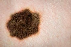 Back to Basics About Melanoma  Melanoma is the deadliest form of skin cancer; which is the most common cancer in the world. Every hour of every single day, somebody somewhere dies from Melanoma.  Melanoma Awareness is our only reason for existing. The more people who we, and other groups like us, can educate, the more lives we can all save together.
