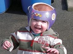 Helmet therapy for flat head syndrome in infants did not improve skull shape by 2 years of age, researchers reported.