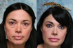 Remove Eye Bags Practicing Key Facial Gymnastics And Eye Exercises