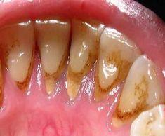 Зубной камень: избавиться от зубного камня без помощи стоматолога Hot Dogs, Beauty Hacks, Beauty Tips, Ethnic Recipes, Food, Eten, Hoods, Beauty Tricks, Beauty Dupes