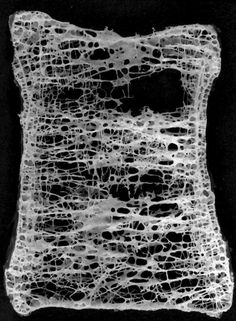 bone structure Source by martakrivosheek Natural Shapes, Natural Forms, Cell Respiration, Electron Microscope Images, Natural Architecture, Tissue Engineering, Microscopic Photography, Microscopic Images, Natural Structures