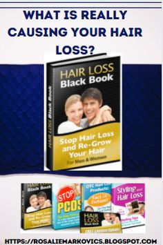 What Causes Hair Loss, Stop Hair Loss, Lead Generation, Health And Wellness, Blogging, Management, How To Remove, Social Media, Posts