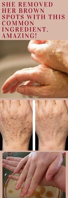 She Removed Her Brown Spots With This Common Ingredient. Amazing!