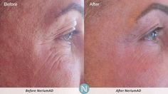 More Real Results with NeriumAD! Can't believe what this has done for me.