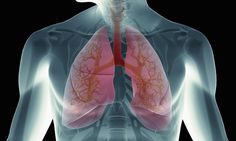#Suicide risk is 4 times higher for lung cancer patients - Daily Mail: Daily Mail Suicide risk is 4 times higher for lung cancer patients…