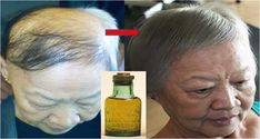 This serum is like a magic potion, which helps stimulate hair growth very fast. No more to hair loss and baldness. This serum is made with old herbal oils that stimulate the hair follicles and restart the growth of fallen hair. To make this serum you will Thinning Hair Remedies, Hair Remedies For Growth, Hair Loss Remedies, Hair Growth Tips, Make Hair Grow, How To Grow Natural Hair, Essential Oils For Hair, Hair Thickening, Hair Loss Treatment