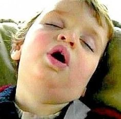 Sleep Remedies Many kids diagnosed with ADHD have symptoms similar to those caused by sleep apnea. Learn how this occurs and how to recognise the symptoms and cope. Sleep Apnea Diagnosis, What Causes Sleep Apnea, Causes Of Sleep Apnea, Insomnia Causes, Home Remedies For Snoring, Sleep Apnea Remedies, Insomnia Remedies, Sleep Apnea In Children, Insomnia In Children