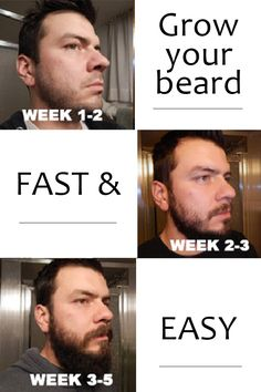 Just when I wanted to give up, I tried this and grew a beard!