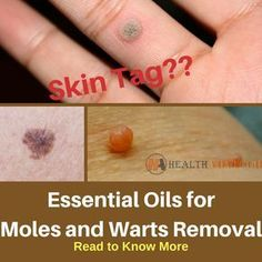 oil for warts Moles and warts are irritating skin conditions. Learn about the tips and methods. Moles and warts irritate skin conditions. Learn about tips and methods to easily remove it at home with the help of some essential oils. Essential Oil Wart Remover, Essential Oils For Skin, Essential Oil Uses, Young Living Essential Oils, Essential Oil Warts, Easential Oils, Doterra Oils, Mole Removal, Young Living Oils