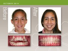 "Before and After: One of my patient's fathers asked me if I'd seen many problems as difficult as his daughter's . I answered, ""In 25 years there isn't much I haven't seen. As a specialist, I get all the hard ones!"" This month's smile was one of them. Beautiful! #JorgensenOrtho #Braces #BeforeAndAfter #Smile"