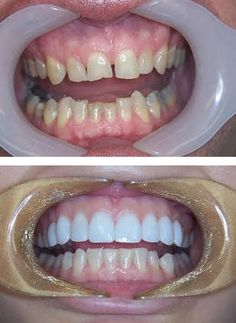 Hollywood smile makeover. Complete smile makeover with porcelain Veneers and Zoom Whitening.