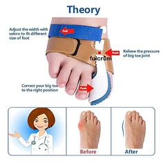 fb77625c03a764 Bunion Corrector and Bunion Relief Sleeve with Gel Bunion Pads Toe  separators Cushion Bunion Protector -