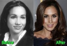 Meghan Markle is known for series Suits, and soon to be a princess, and she allegedly had a cosmetic help to look the way she does? People are now asking their plastic surgeons for a Meghan Markle Nose Job. Meghan Markle Photos, Meghan Markle Style, Plastic Surgery Photos, Celebrity Plastic Surgery, Meghan Markle Prince Harry, Prince Harry And Meghan, Meghan Markle Nose Job, Meghan Markle Plastic Surgery, Lady Diana