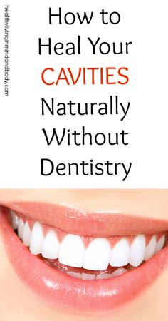 How to Heal Your Cavities Without Dentistry