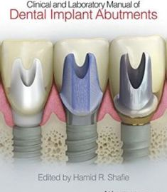 Clinical And Laboratory Manual Of Dental Implant Abutments PDF