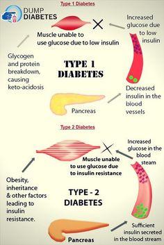 Doctors Reversed Diabetes in Three Weeks! - type 2 diabetes #diabetes#diabetes #symptoms
