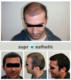 Üst ve yan bölgelerinde açıklıkları olan hastaya, Manuel Punch tekniği ile maksimum saç kökü (greft) çalışılmıştır. 1 yıl sonrasında ise sonuç; gülen bir yüz, SIK ve DOĞAL saçlar... Sonuç sizce de harika değil mi? ✌ #supraesthetic #hair #hairtransplant #saç #saçekimi #maksimumgreft #Türkiyesaçekimi #İstanbulsaçekimi #Türkiye #İstanbul