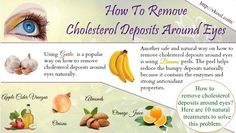 How to remove cholesterol deposits around eyes? Here are 10 natural treatments to solve this problem. What Causes High Cholesterol, High Cholesterol Levels, Cholesterol Symptoms, Lower Your Cholesterol, Reduce Cholesterol, Lipid Profile, Alternative Medicine, Natural Treatments, Health