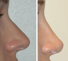 How to choose the right rhinoplasty London surgeon.  click here to know more…