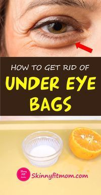 How To Get Rid Of Under Eye Bags: 9 Proven Home Remedies That Works #darkcircle Check out these easy at-home remedies for dark circles! Keep reading to learn how you can get rid of your under-eye bags for good.