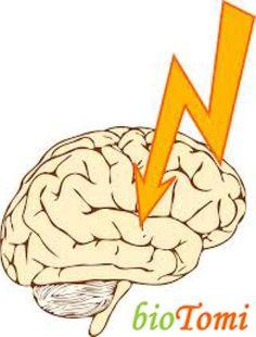 Te tudod a pontos okát a stroke -nak? És a jeleit? És a tüneteit ismered? A kezelési módokat? Ebben a hosszú és alapos cikkben mindenre választ kapsz