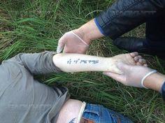 В Будённовске возле здания районной больницы найдено тело девушки с татуировками
