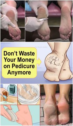 Don't Waste Your Money on Pedicure Anymore: Just Two Ingredients from Your Kitchen Can Make Your Feet Look Amazing Your feet condition can actually say a lot about you. Although most people tend to overlook the health and beauty