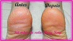 Resultado Kit Mãos de Seda... Não serve só para as mãos, quer experimentar? ♥ WhatsApp 51 9184.1211 #cuidadosMK #marykay #MãosDeSeda #Pele #Mãos #DiaDasMães #PésDeSeda #MaciezDaPele