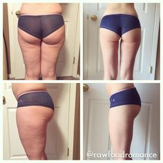 """Lissa's Raw Food romance   """"Same girl. Same shorts. Almost 10 months to the day apart. Before pics were shot November 23, 2014. After pics are today, September 28, 2015. My skin has improved dramatically. I'm so impressed! My knees don't make creaky noises and scream in pain when I run or squat anymore. Yes I still have stretch marks. Yes my skin isn't perfect. But know what? I LOVE where I am."""""""