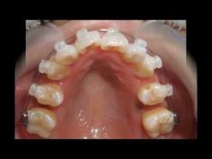 Dental crowding Chart 4901 Second bicuspid and first molar tooth extraction  and orthodontics