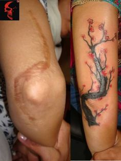 12 Coolest Tattoos Covering Scars (tattoos over scars, tattoos to cover scars) - ODDEE