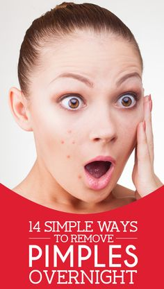 Annoyed about the pimples that just bulged suddenly? You may be really wanting to know how to remove pimples overnight. Here are the ...