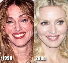 Source by allpinphotoshare Related posts: Madonna Plastic Surgery Before and After Suzanne Somers before and after plastic surgery Cameron Diaz Nose Job Plastic Surgery Before and After Pictures Plastic Surgery Before After, Plastic Surgery Gone Wrong, Plastic Surgery Photos, Madonna, Facial Cosmetic Surgery, Celebs Without Makeup, Celebrities Before And After, Celebrity Plastic Surgery, Celebrity Faces