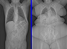 Normal x-ray - Obese x-ray
