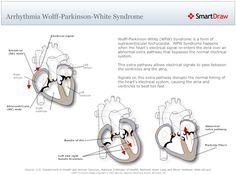 Wolff-Parkinson White Syndrome. My doctor said I have this, and I'd never heard of it, but its good to know about it.
