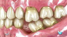 07 Consecuencias de la perdida de un diente