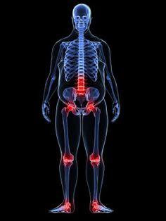 Schéma d'articulations douloureuses dans obèses mâle