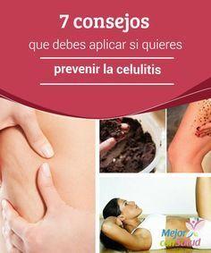 7 consejos que debes aplicar si quieres prevenir la celulitis La celulitis es una afección del tejido subcutáneo que suele ser visible en la cara externa de los muslos, los glúteos y el abdomen.