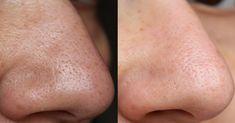 postup: Smíchejte si zubní pastu se solí a důkladně promíchejte. Naneste si směs na oblast s černými tečkami a nechte působit 5 minut, dokud nevyschne. Obličej si smyjte vodou pokojové teploty a masírujte si při tom kůži. Následně si obličej přetřete kostkou ledu, aby se vám zúžily póry. Výsledkem bude dokonale čistá pleť. Pasta má …