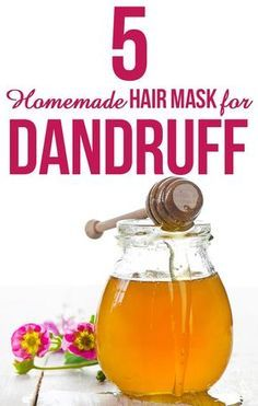 5 Hair Masks For Dandruff That Worked Wonders For Me