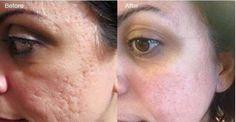 rejuvenecedor de piel garantizado con optimera nerium mexico visita www.beautyfaces.nerium.com