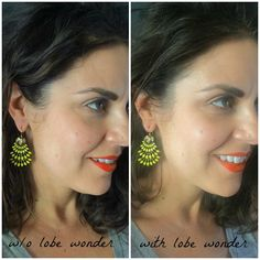 LOBE WONDER | EARRING PATCHES//Where is June?