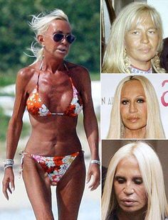 Donatella Versace before after surgery Plastic Surgery Facts, Bad Plastic Surgeries, Plastic Surgery Gone Wrong, Donatella Versace Before, Donatella Versace Plastic Surgery, Celebrities Before And After, Celebrities Then And Now, Botox Before And After, Before And After Haircut