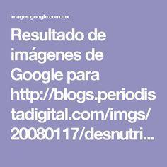 Resultado de imágenes de Google para http://blogs.periodistadigital.com/imgs/20080117/desnutricion.jpg