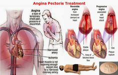 Angina pectoris is a phrase that comes from Latin and translates as 'tight chest'.People with angina experience pain in the centre of the chest. Cardiac Nursing, Nursing Diagnosis, Heart Pressure, Nutrition Chart, Cheese Nutrition, Angina Pectoris, Green Grapes Nutrition, Dark Chocolate Nutrition, Physical Therapy