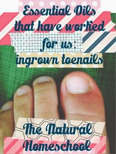 The Best Essential Oils for an Ingrown Toenail: 3 Easy Steps Did you know that you could use essential oils to possibly help support the immune system and help relieve discomfort of ingrown toenails? Ingrown Toenail Remedies, Ingrown Toe Nail, Ingrown Hair, Easential Oils, Doterra Essential Oils, Essential Oil Uses, Natural Essential Oils, Young Living Oils, Young Living Essential Oils