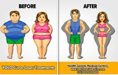 Reduce abdominal obesity and cure back pain Back Pain, The Cure, Family Guy, Medical, Weight Loss, Slim, Guys, Health, Salud