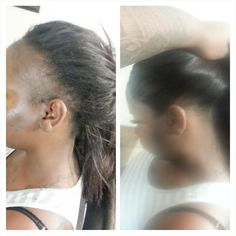 Ideas Natural Hairstyles For Thin Edges Pretty Of Hair Thinning