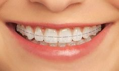 Clarity™ Ceramic Braces can transform your smile without metal braces. Craig L Menker DMD provides affordable treatment in Warren, NJ & South Plainfield, NJ. Teeth Braces Cost, Different Types Of Braces, Cute Braces Colors, Ceramic Braces, Misaligned Teeth, Invisible Braces, Orthodontic Appliances, Crooked Teeth, Kisses