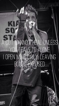 Bones Exposed - Of Mice & Men
